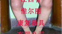 亚博体育ios官方下载康复器具公司—如何矫正O型腿